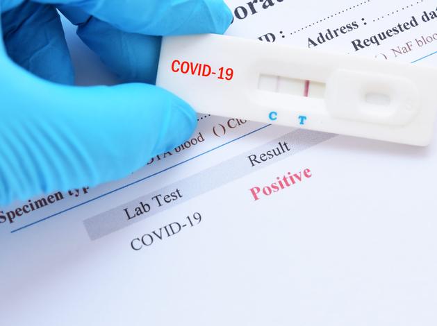 В Челябинске частная клиника обнародовала результаты тестов на антитела к COVID-19